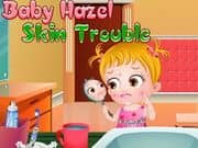 Juego Baby Hazel Skin Trouble