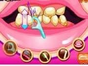 Juego Barbie va al Dentista