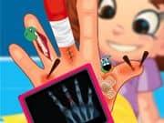 Juego Deni hand surgery