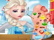 Juego Elsa Frozen Cura de los Pies