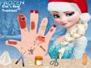 Juego Elsa Frozen Tratamiento de la Mano